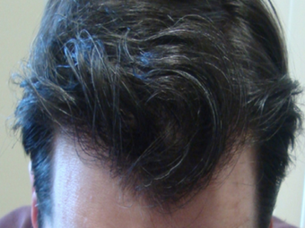 Hair Restoration - Frontal Scalp (3350 grafts) after 1438784