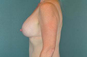 Breast Implants after 1134152