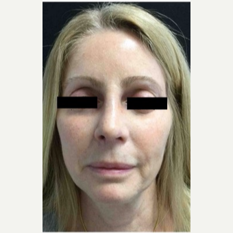 55-64 year old woman treated with Revision Rhinoplasty after 3187228