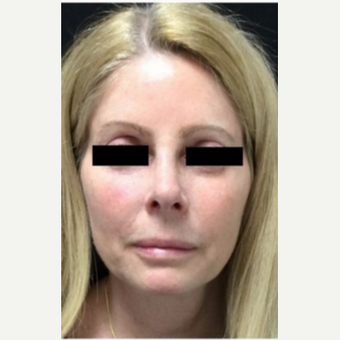 55-64 year old woman treated with Revision Rhinoplasty before 3187228