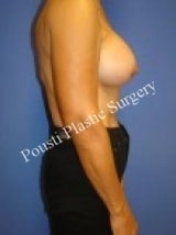 Breast Augmentation 705771