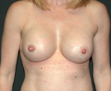 Breast Implants after 3544966