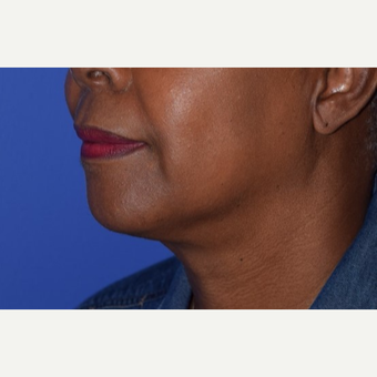55-64 year old woman treated with Chin Liposuction after 3638242