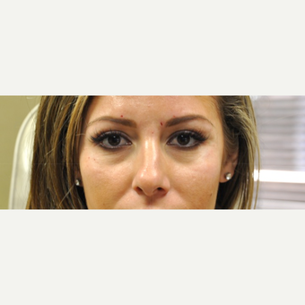 25-34 year old woman treated with Restylane before 3182002