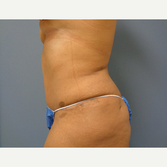 25-34 year old woman treated with Tummy Tuck after 3747836