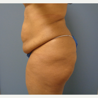 25-34 year old woman treated with Tummy Tuck before 3747836