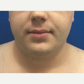 25-34 year old man treated with Chin Surgery before 3496309