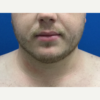 25-34 year old man treated with Chin Surgery after 3496309