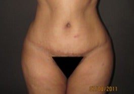 35-44 year old woman treated with Tummy Tuck after 1634658