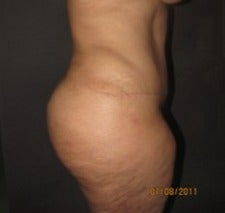 35-44 year old woman treated with Tummy Tuck 1634658