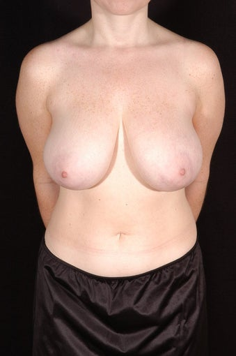 Breast Reduction before 131489