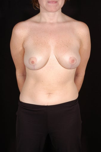 Breast Reduction after 131489