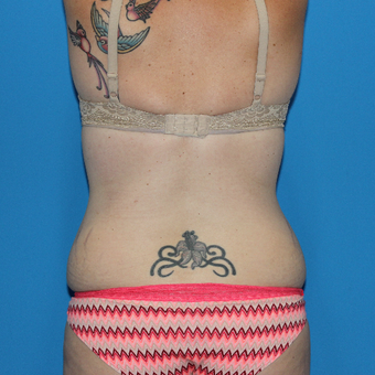 25-34 year old woman treated with Liposuction before 3332845
