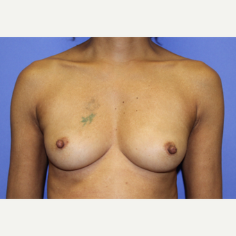 35-44 year old woman treated with Breast Augmentation before 3321743