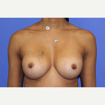 35-44 year old woman treated with Breast Augmentation after 3321743