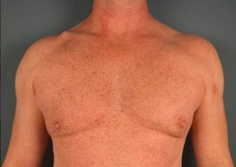 45-54 year old man treated with Liposculpture before 1740624