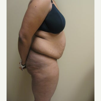45-54 year old woman treated with Tummy Tuck before 2486097