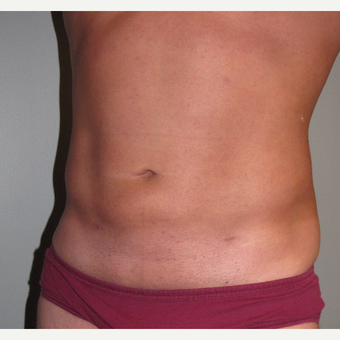 35-44 year old man treated with Liposuction after 3248810