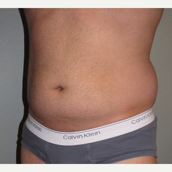 35-44 year old man treated with Liposuction before 3248810