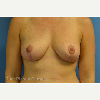 35-44 year old woman treated with Breast Reduction after 3350294