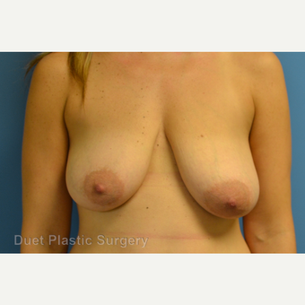 35-44 year old woman treated with Breast Reduction before 3350294