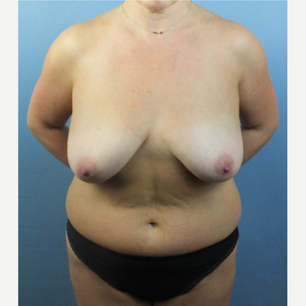 35-44 year old woman treated with Mommy Makeover before 3124110