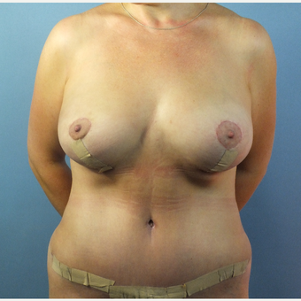 35-44 year old woman treated with Mommy Makeover after 3124110