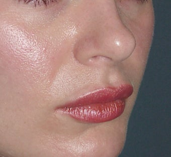 Lip Augmentation after 361670