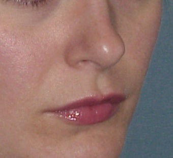 Lip Augmentation before 361670