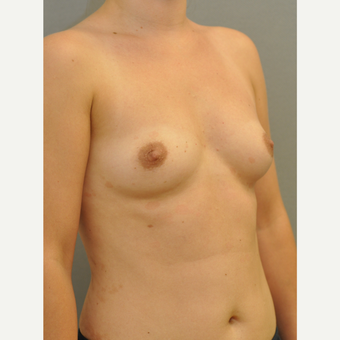 25-34 year old woman treated with Breast Implants before 3843074