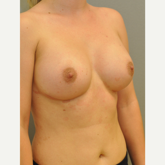 25-34 year old woman treated with Breast Implants after 3843074
