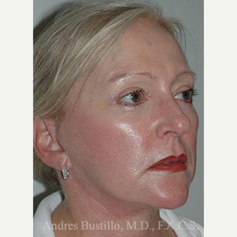 58 year old woman treated with Facelift after 3486303