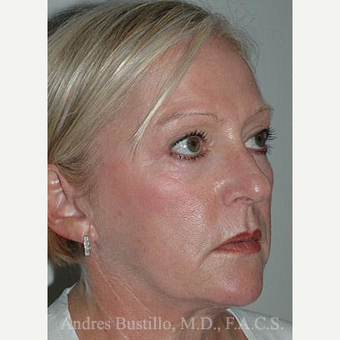 58 year old woman treated with Facelift before 3486303