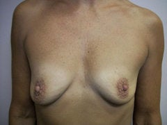 Breast Augmentation before 258588