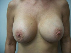 Breast Augmentation after 258588