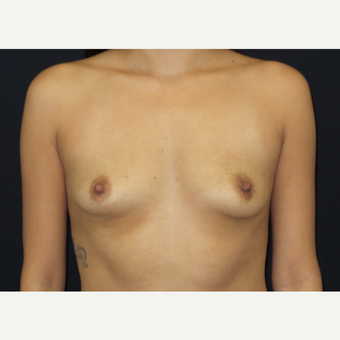 25-34 year old woman treated with Breast Augmentation before 3182094