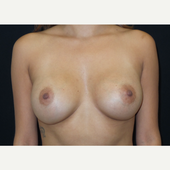 25-34 year old woman treated with Breast Augmentation after 3182094