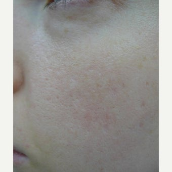 TCA CROSS and laser resurfacing- perfect combination.
