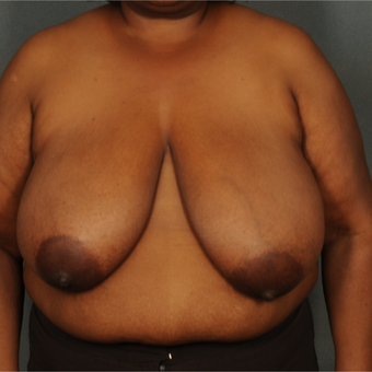 35-44 year old woman treated with Breast Reduction before 3103706