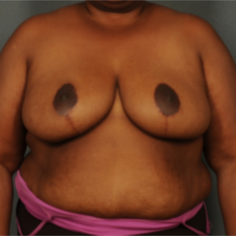 35-44 year old woman treated with Breast Reduction after 3103706