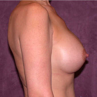 Breast Implants after 3033140