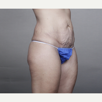 25-34 year old woman treated with Tummy Tuck and Liposuction before 3131591