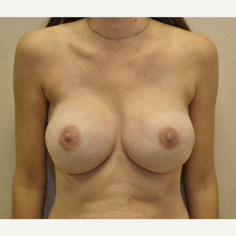 35-44 year old woman treated with Breast Reconstruction after 3127718