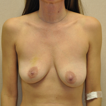 35-44 year old woman treated with Breast Reconstruction before 3127718