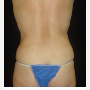55-64 year old woman treated with CoolSculpting after 3181853