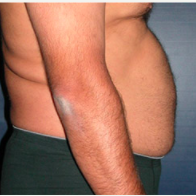 45 year old man treated with Liposuction before 3721123