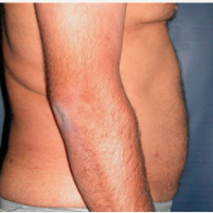 45 year old man treated with Liposuction after 3721123
