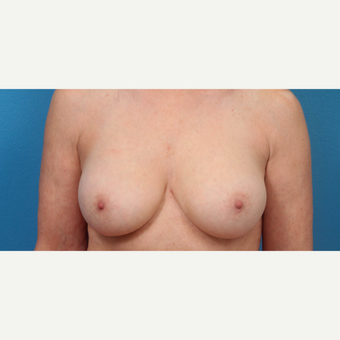 45-54 year old woman treated with Breast Implant Revision after 3340108