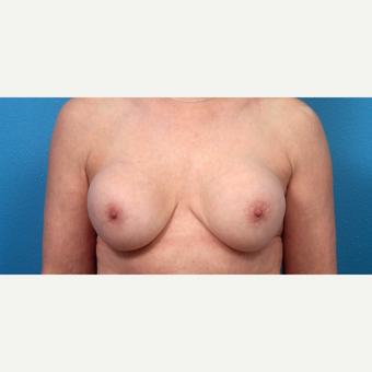 45-54 year old woman treated with Breast Implant Revision before 3340108