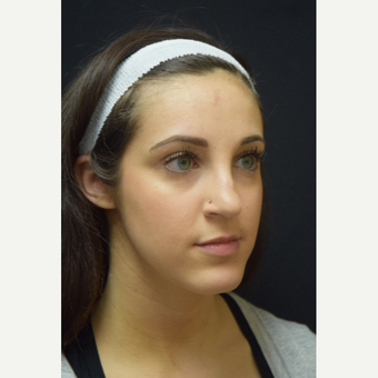 25-34 year old woman treated with Rhinoplasty before 3724351